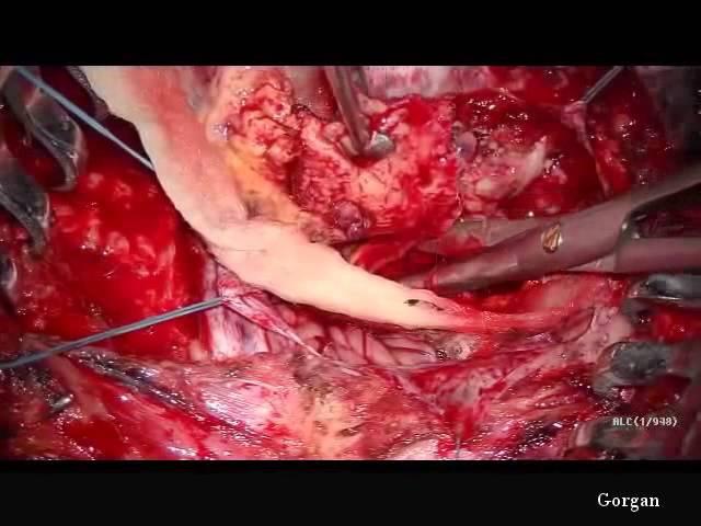 Операция Удаление менингиомы задней черепной ямки