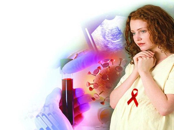 Почему каждый пятидесятый в российских городах уже заражен ВИЧ