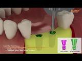 OSSTEM implant - Ортопедический протокол.Имплантация.