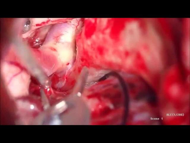 Операция Клипирование аневризмы задней соединительной артерии