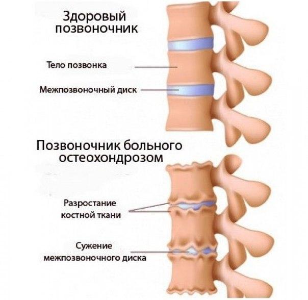 Как можно излечить шейный остеохондроз в домашних условиях