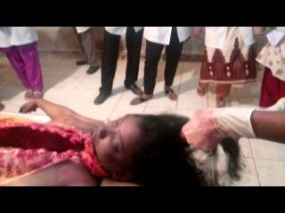 Autopsy(Post Mortem) of a female dead body of strangulation Part II
