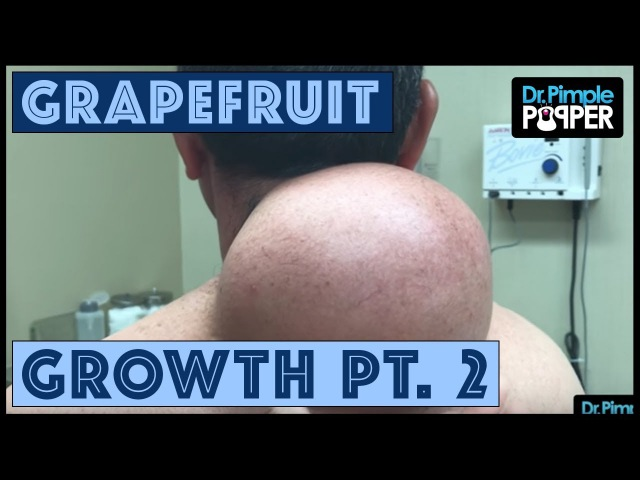 Grapefruit-Sized Growth, Part 2: The Pop