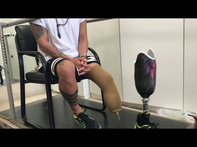 The first steps on the prosthesis. Первые шаги на протезе. Кима Дима. Ощущения. Радость.