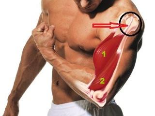 Правильный Бодибилдинг. Травмы плеча. Как вправить сухожилие внешней головки би...
