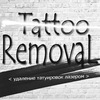» Лазерное удаление тату татуировок татуажа Киев