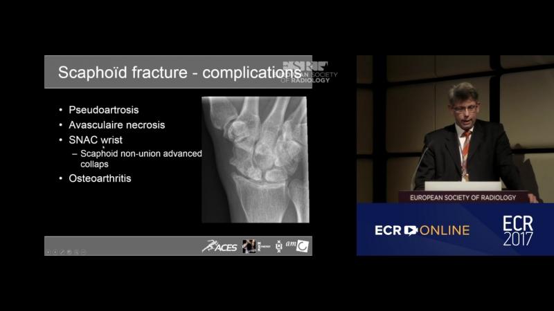 Лучевая диагностика травм костей (M. Maas AmsterdamNL)