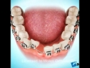 Удаление зубов при скученности
