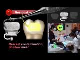 Rebonding Tips for the Custom Bracket System-Insignia. Ортодонтия.