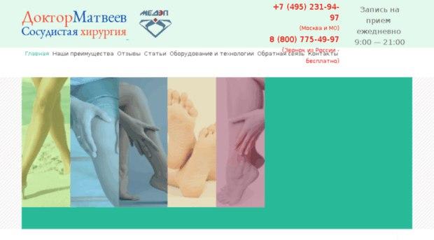 Лазерное лечение варикоза в Москве