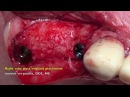Bilateral Sinus graft GBR with tenting screw Vs laminate block graft