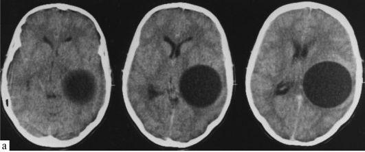 Эхинококкоз головного мозга: этиология, диагностика, клиника ...