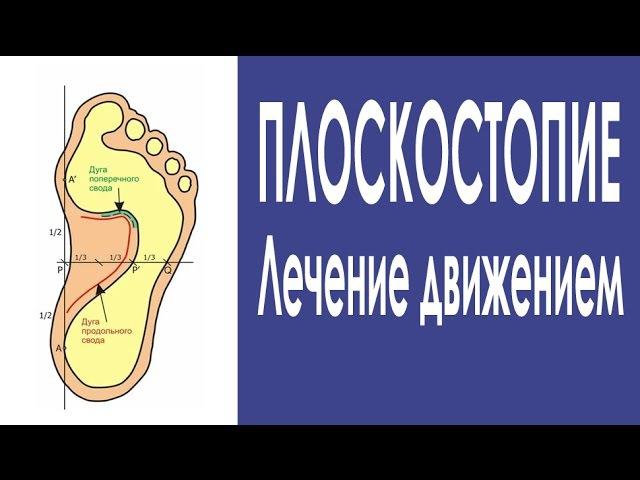 Упражнения для лечения плоскостопия Формируем свод стопы
