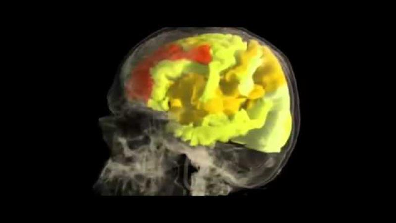 Woman's BRAIN while having an ORGASM : fMRI Scan