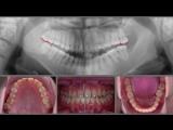 Orthodontic Finishing Plan for a Severe Class III Case. Ортодонтия.
