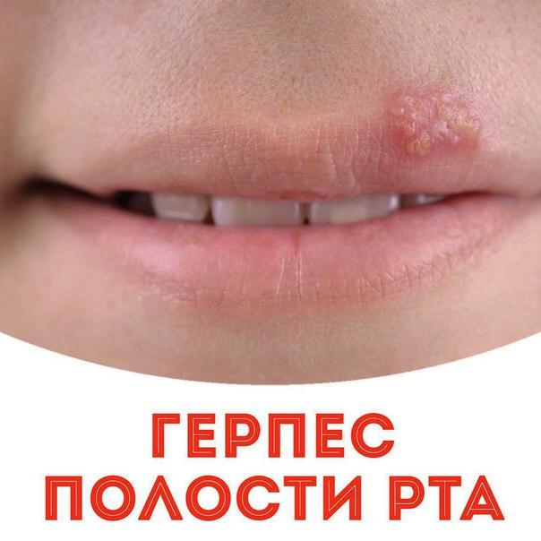 Герпес и простуда на губе как лечить быстро