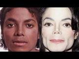 Почему Майкл Джексон мутировал в белый цвет