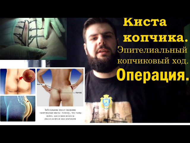 Киста копчика.Копчиковый ход. Операция. / Pilonidal cyst. Pilonidal sinus. Surgery. My story