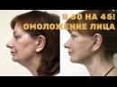 Омоложение лица в 60 выглядеть на 45