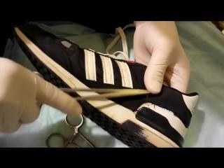 Когда у медика порвались кроссовки