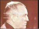 Декомпрессионная трепанация черепа, консультант академик В.В.Кованов © Decompression craniotomy