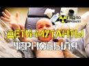 Дети мутанты Чернобыля - шокирующее наследие Чернобыльской катастрофы