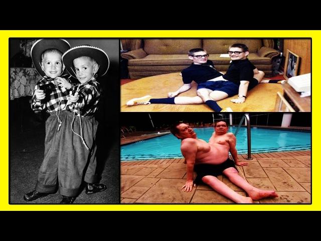 65-летние Ронни и Донни Гэлион -Самые Долгоживущие Сиамские Близнецы в Мире!
