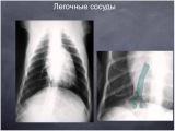 Рентгенография грудной клетки мелких домашних животных. Часть 1