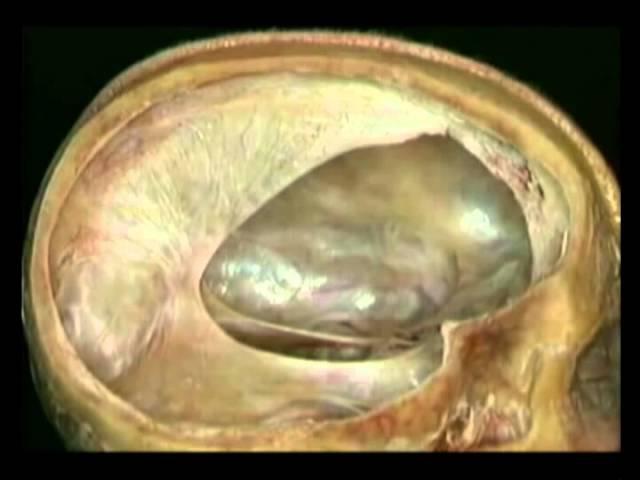 Оболочки головного мозга Атлас Окланда