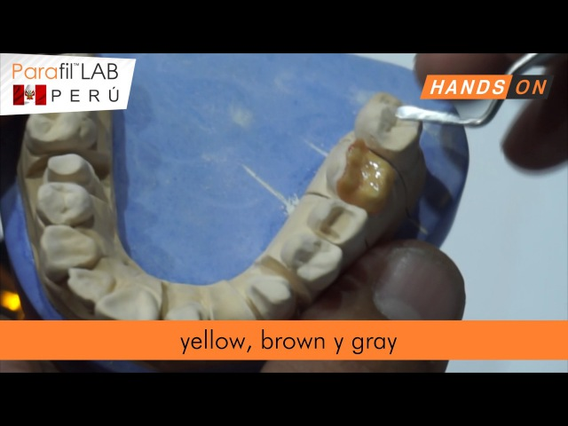 Parafil Lab Resina con Zirconio : Incrustación