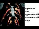 Каким образом грыжа диска сдавливает корешки и воспаляется rfrbv j,hfpjv uhs;f lbcrf clfdkbdftn rjhtirb b djcgfkztncz