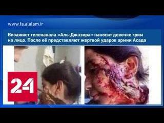 Новый вброс: девочку, раненную солдатами Асада, загримировали в Аль-Джазире
