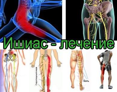 Поясничный остеохондроз что такое и как лечить