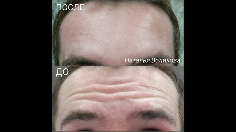 Диспорт для мужчин_косметолог Наталья Воликова
