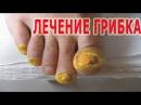 ★Лечение ГРИБКА НОГТЕЙ народными методами 9 лучших рецептов против МИКОЗА