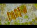Lipid droplets inside of diatom cells - microscope 1000x