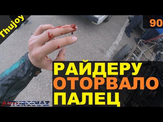 Мотоциклисту оторвало палец 18