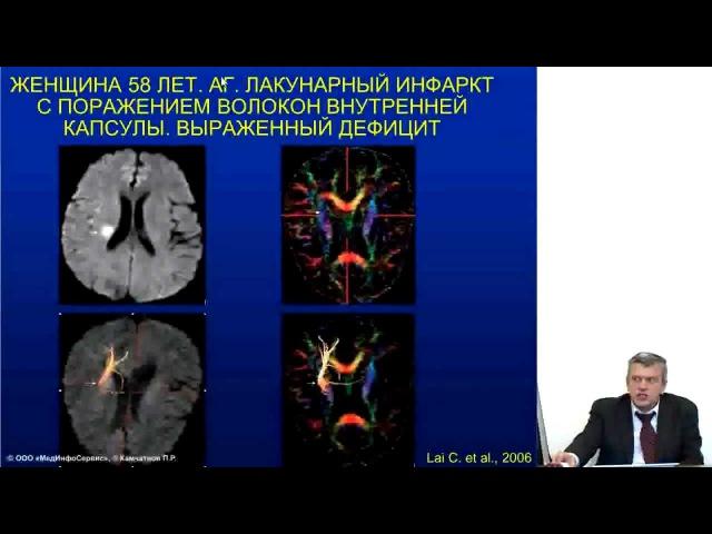 L - карнитин при ишемическом инсульте, д. м. н., проф. П. Р. Камчатнов диета диетология здоровое питание неврология