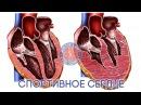 Доктор Спорт Спортивное сердце ljrnjh cgjhn cgjhnbdyjt cthlwt