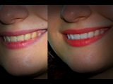 PS CS6 - Как отбелить зубы и убрать синяки под глазами