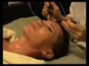Аппарат для микротоковой терапии разглаживающий морщины