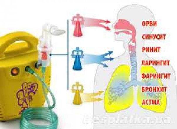 Ингалятор для детей от насморка в домашних условиях