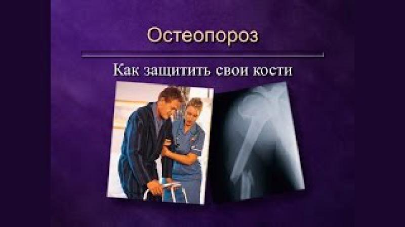 8. Остеопороз. Как защитить свои кости.