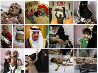 Yemen On the brink of starvation BBC News