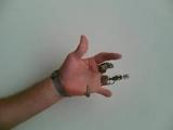 X-Finger - первые искусственные пальцы