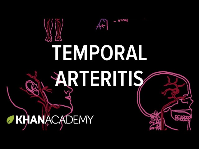 Temporal arteritis Circulatory System and Disease NCLEX RN Khan Academy