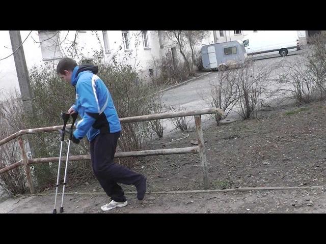 Parkour injured