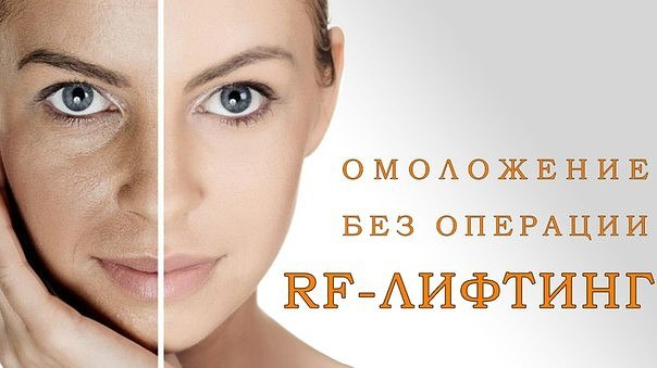 Rf омоложение лица отзывы