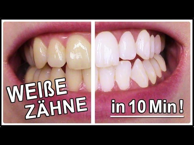 Weiße Zähne in 10 Minuten | Gelbe Zähne aufhellen mit diesen Hausmittel