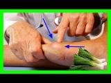 Como Disminuir el Acido Urico del Cuerpo, con un Remedio Casero